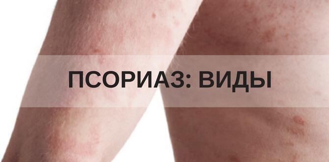 Причины псориаза и механизм развития