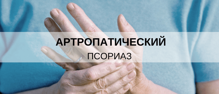 Псориаз артропатического типа диагностика и лечение
