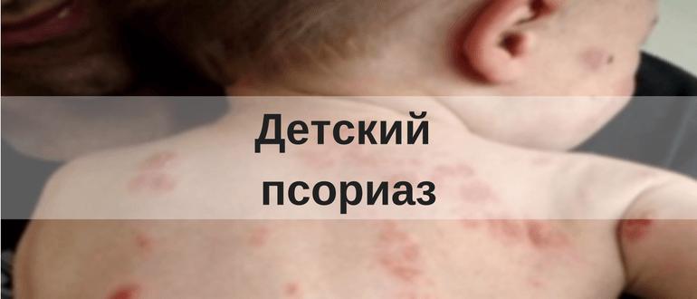 Лечение Псориаза Отзывы 2019