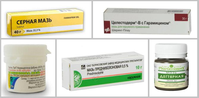 Белорусские клиники лечения псориаза - Псориаз