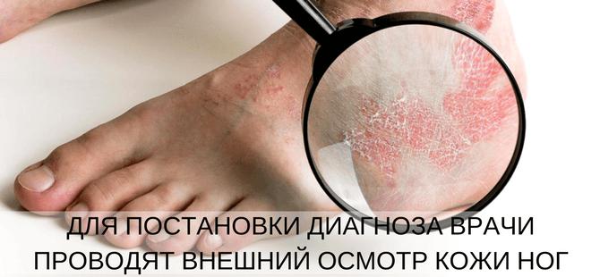 диагностика псориаза на ногах