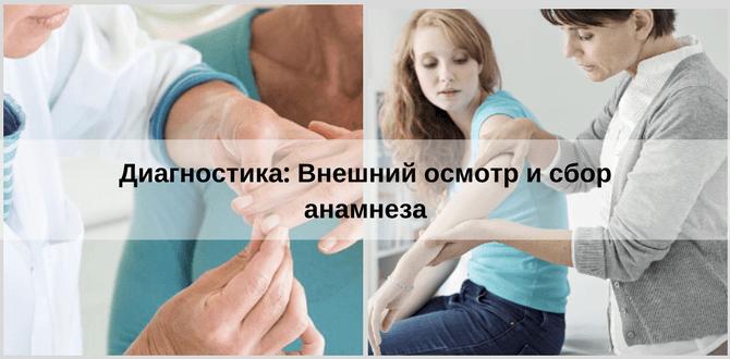диагностика псориаза у женщин