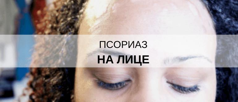 Чем лечить псориаз на лице форум
