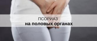псориаз на гениталиях