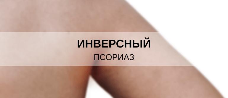 Псориаз под грудными железами