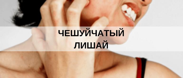 Чешуйчатый лишай (Псориаз): фото и лечение
