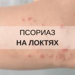 Псориаз на локтях — причины, симптомы и методы лечения