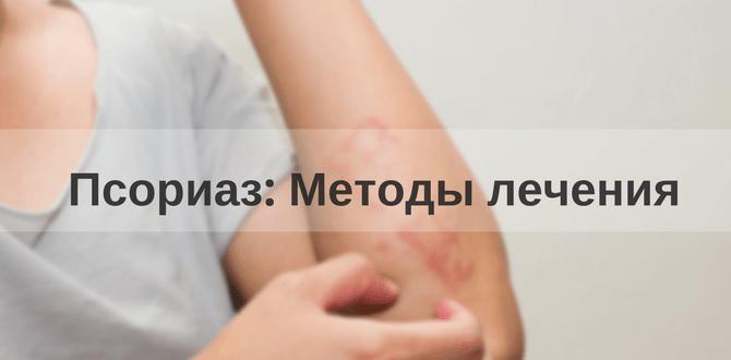 методы лечения псориаза