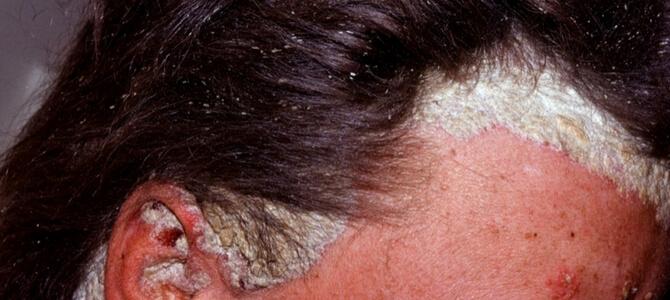 Помогите вылечить псориаз. - Клиника Лечения Волос в Москве