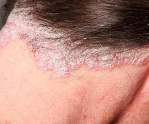 Как определить на голове перхоть или псориаз - Псориаз