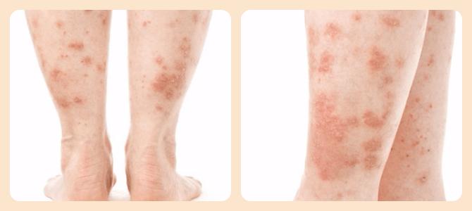 симптомы псориаза на ногах