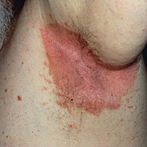 последствия инверсного псориаза