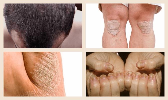 симптомы внутреннего псориаза