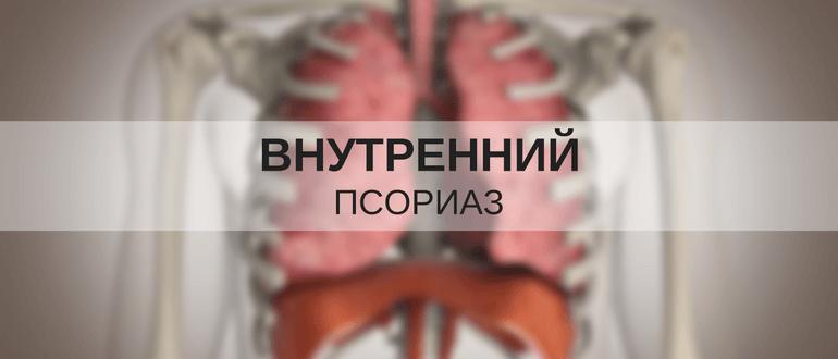 Внутренний псориаз: симптомы псориаза внутренних органов