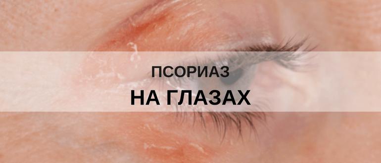 Лечение Псориаза Алтай