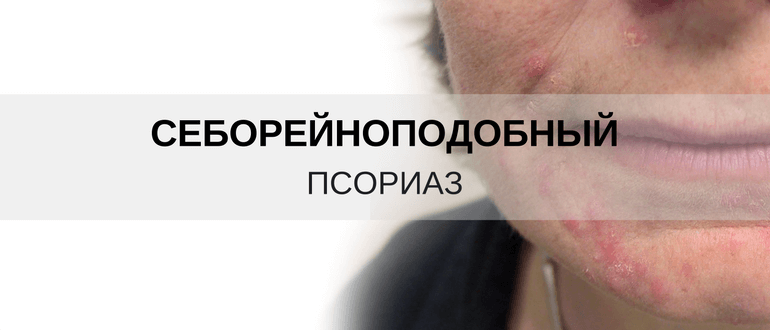 Как отличить псориаз от дерматита? Себорейный псориаз на лице