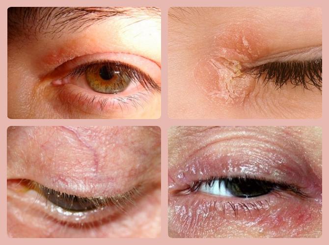 симптомы псориаза на глазах