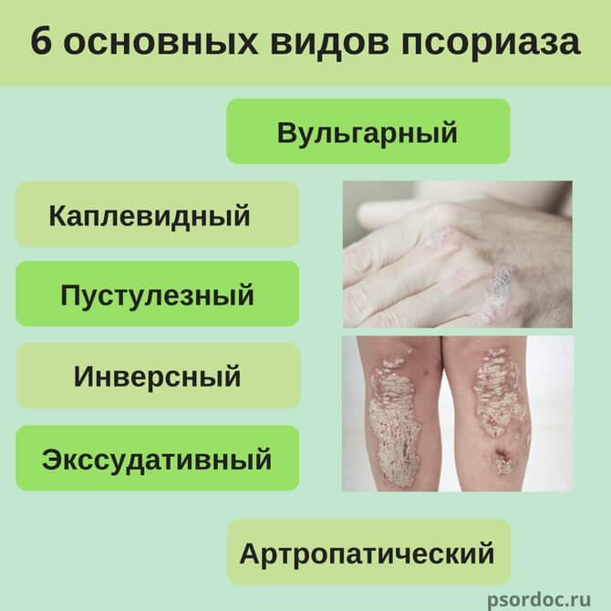 Клиника Лечение Псориаза Уфа