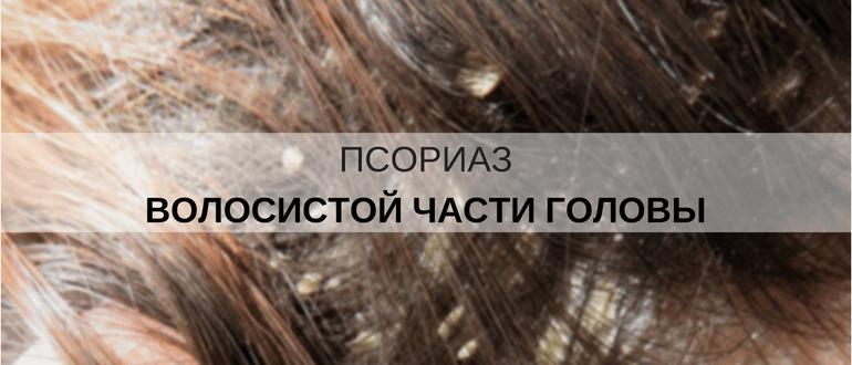 От чего появляется псориаз на голове