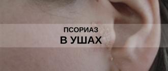 псориаз в ушах