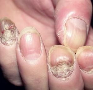 симптомы псориаза на ногтях