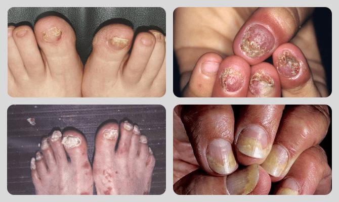 какие могут быть последствия псориаза на ногтях