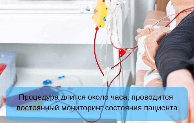 Методика проведения плазмафереза