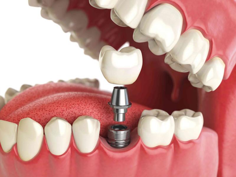 Преимущества зубных имплантатов для замены зубов