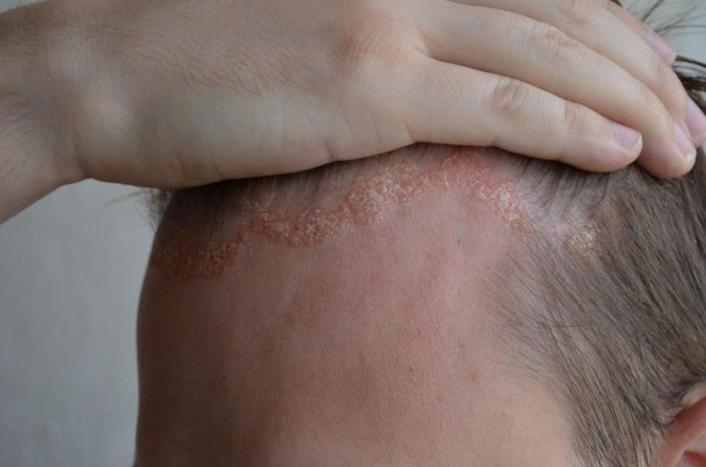Причины, симптомы и лечение псориаза волосистой части головы