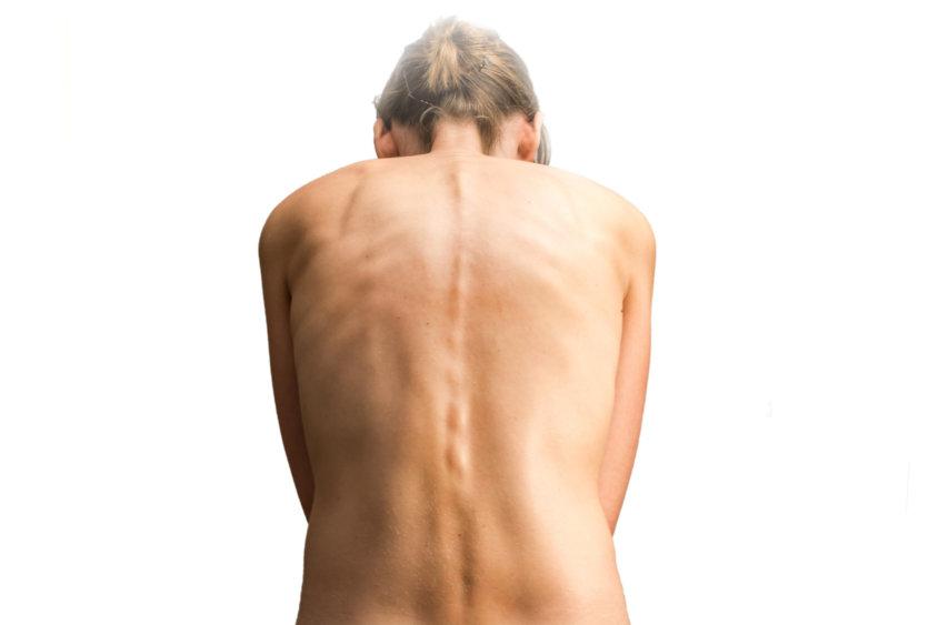 Важность правильной осанки в противодействии боли в спине