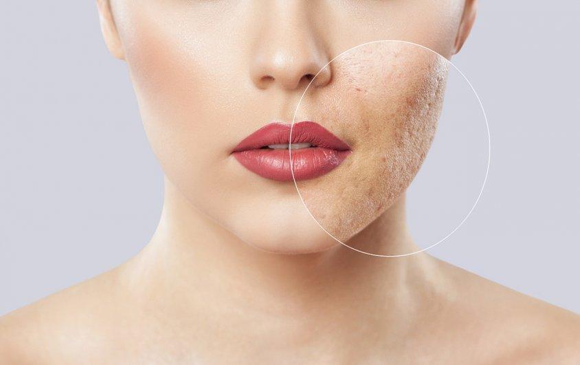 Шрамы от угревой сыпи - какие методы лечения дают впечатляющие результаты?